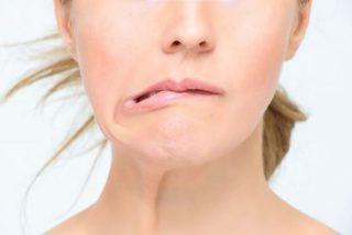 leczenie botuliną - spastyczność, kurcze